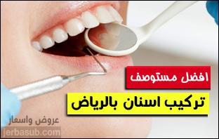 افضل مستوصف تركيب اسنان بالرياض