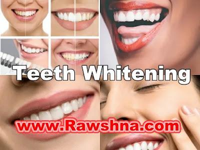 افضل طرق تبييض الاسنان على الإطلاق