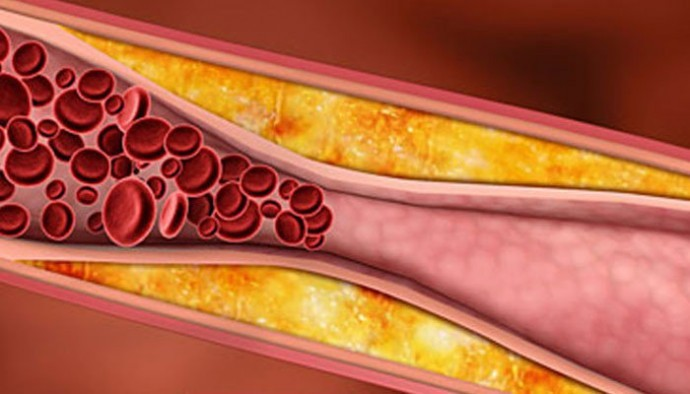 Obat Herbal Penyakit Kolesterol Tinggi