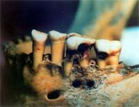 """<Img src =""""mandíbula-caries-tumba-egipcia.jpg"""" width = """"220"""" height """"169"""" border = """"0"""" alt = """"Foto abscesos dentales"""">"""