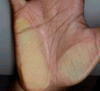 Big Gap Between Head & Lifeline Palmistry
