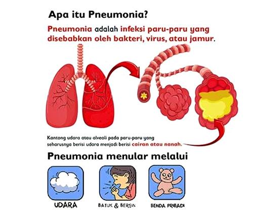 Apa Itu Pneumonia Pada Anak?