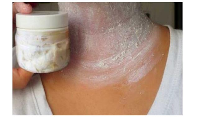 Remueva las molestas manchas oscuras en el cuello, las axilas y el interior. Asombrosos resultados en 15 Minutos