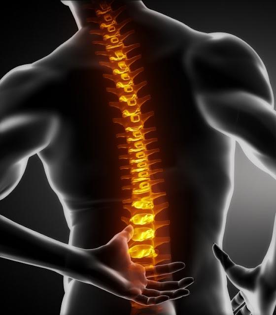 penyebab sakit punggung atau nyeri pada tulang bagian belakang