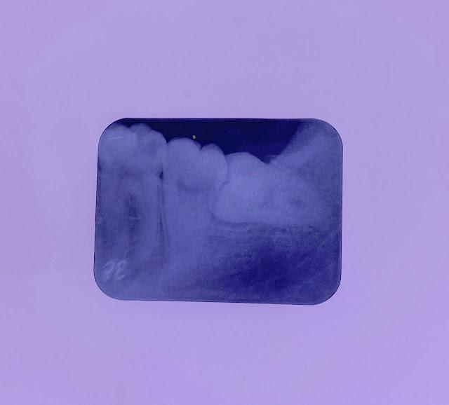 rontgen-gigi-sebelum-dilakukan-treatment