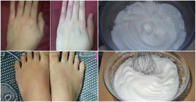 Luar Biasa !! Cream Pemutih Alami Ini Ampuh Memutihkan Tangan dan Kaki Anda Putih Alami.. Perhatikan Cara Membuatnya…