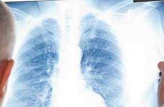Radiologi Bekasi