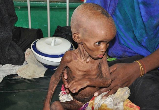 Penelitian World Bank and UN Launch Mechanism to Prevent Famine