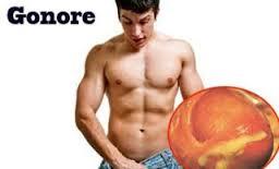 Image Obat alami penyakit kelamin Gonore