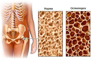 Лечение суставов в Одессе народными средствами, лечение артроза коксартроза коленного и тазобедренного голеностопного сустава