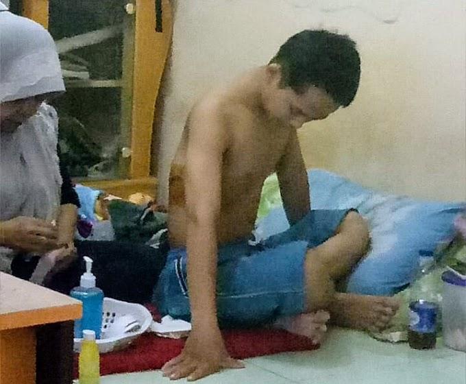 Adit, Anak Yatim-Piatu Terkena Sabetan Sajam oleh Oknum Siswa SMK Prestek Cikande