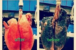 buah dan Sayuran yang dapat membersihkan paru-paru dari racun rokok dan polusi