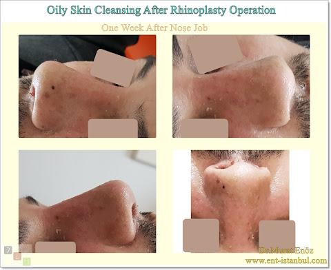 Oily Skin Cleansing After Rhinoplasty Operation