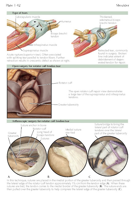 Surgical Management Of Supraspinatus And Infraspinatus Rotator Cuff Tears