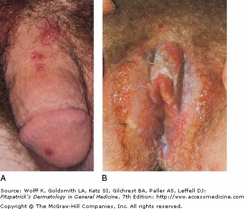 picor alrededor de la vulva