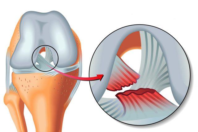 Ortholife كيفية علاج تمزق الأربطة