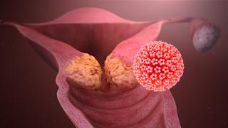 هل سرطان الرحم خطير