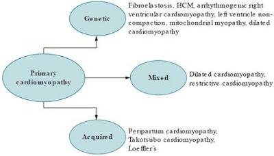 Primary cardiomyopathies