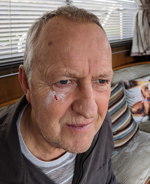 Photo of Phil's injury after Ruby stabbed him with an antler