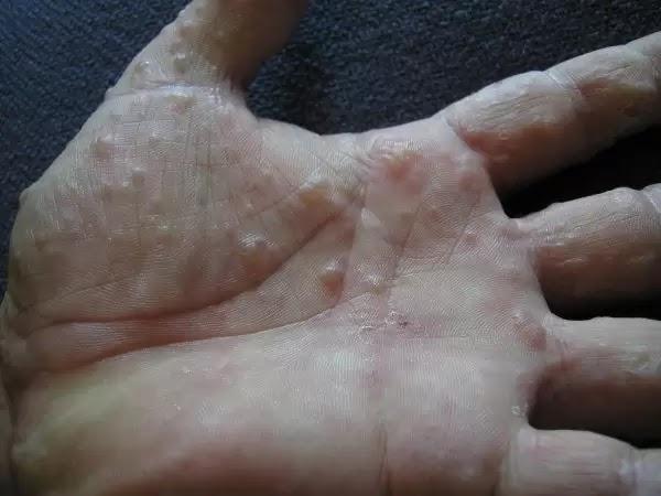 Tìm hiểu nấm tổ đỉa là gì và những triệu chứng thường gặp của bệnh tổ đỉa