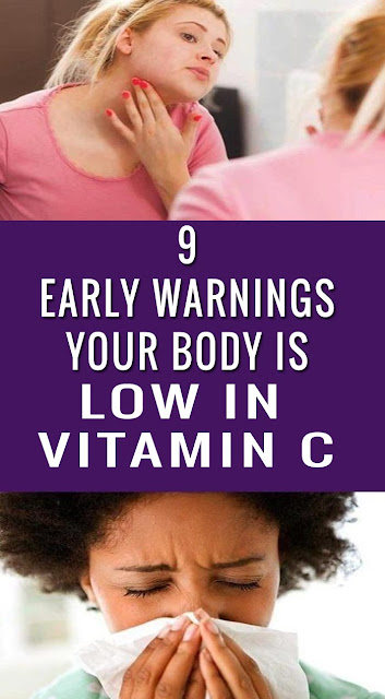 early signs your body is low in vitamin c