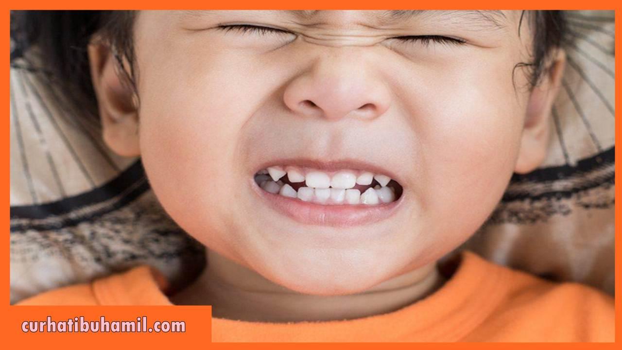 Bagaimana cara mengatasi gigi kuning pada bayi?