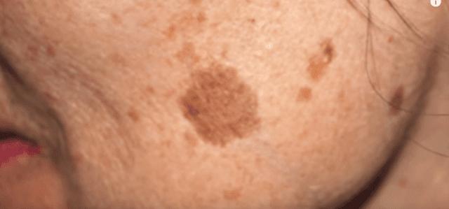 Κόλπο με δύο υλικά για να απαλλαγείτε από τις καφετιές κηλίδες στο δέρμα σας