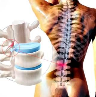 La hernia de disco intervertebral se puede curar con Ozonoterapia