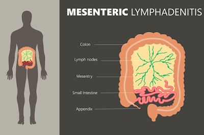 messenteric lymphadenitis treatment