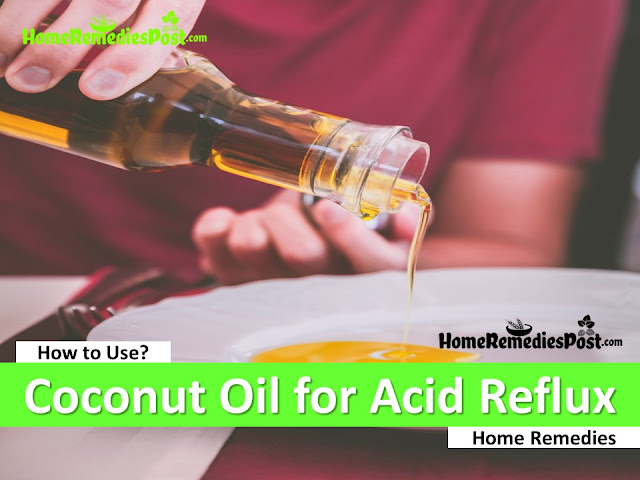 Coconut Oil For Acid Reflux, Coconut Oil And Acid Reflux, Home Remedies For Acid Reflux, Acid Reflux Treatment, How To Get Rid Of Acid Reflux, Acid Reflux Remedies, How To Get Relief From Acid Reflux, Acid Reflux Home Remedies, Treatment For Acid Reflux, How To Cure Acid Reflux, Relieve Acid Reflux, Acid Reflux Relief
