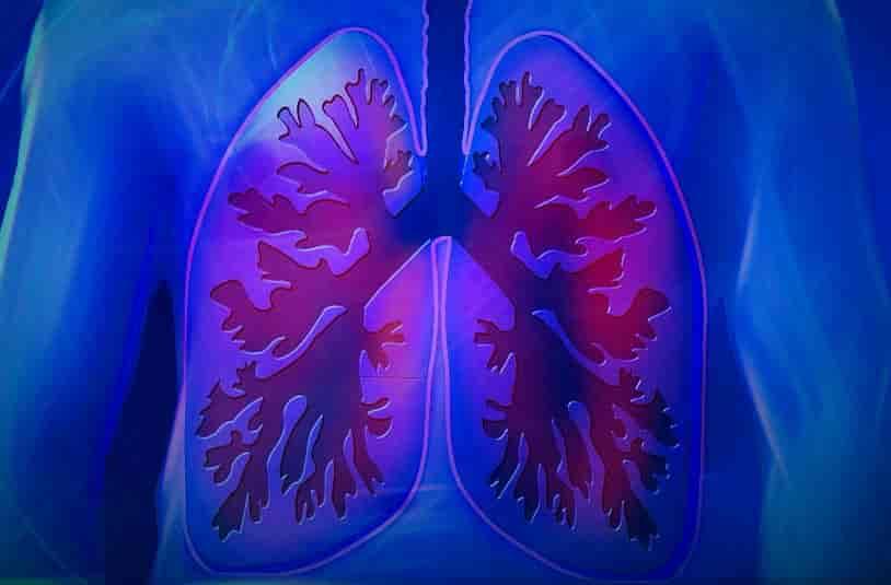 Pneumonia : Causes, Symptoms and Ayurvedic Treatment - All
