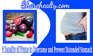 5 Benefits of Plums to Overcome and Prevent Distended Stomach