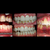 The Prevalence of Gum Disease in the Philippines