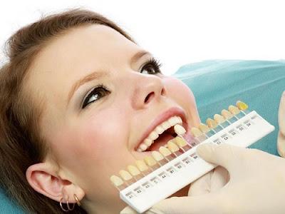 Làm răng sứ cho răng hô có hiệu quả không?
