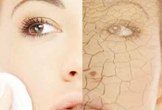 Cara Membersihkan Wajah dari Penyakit Kulit