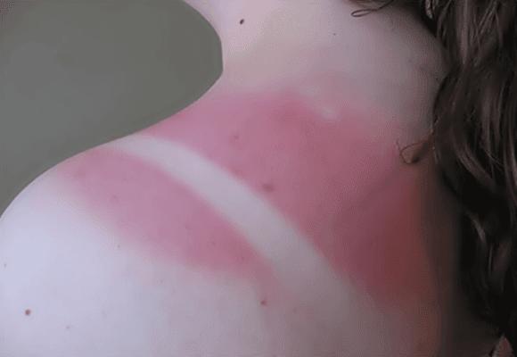 Queimaduras-exposição-sol