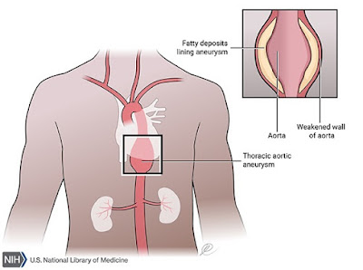 Singing Aorta - Marfan Syndrome and Dissection