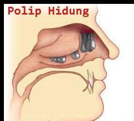 Cara Mengobati Penyakit Polip Hidung Paling Ampuh
