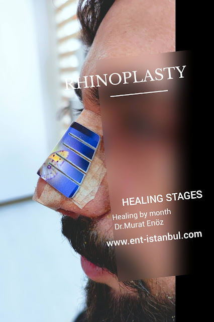 Rhinoplasty recovery timeline,How long does it take to recover from a rhinoplasty?,Rhinoplasty healing stages,How long is recovery time from rhinoplasty?,How long for recovering a rhinoplasty?,