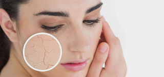 This is the Difference Between Dry Skin and Dehydrated Skin