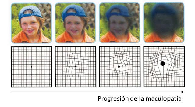 Progresión de la maculopatía relacionada con la edad
