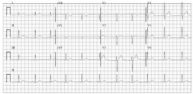 Normal ECG (EKG)