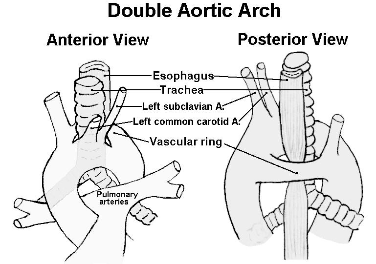 Learning Pediatrics: Vascular ring and Double aortic arch