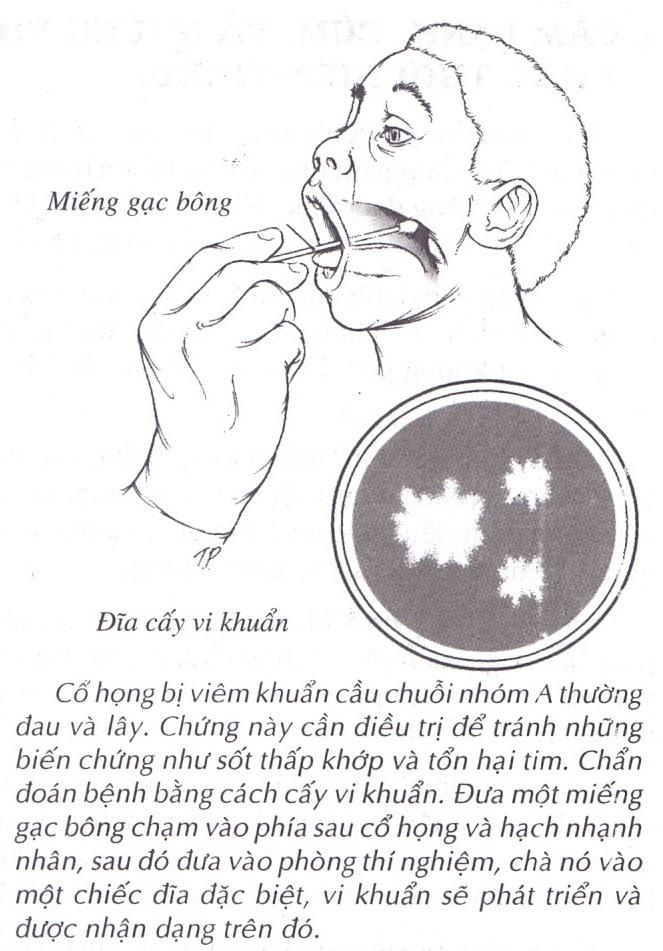 Viêm nhiễm đường hô hấp gây nhiều bất tiện cho cuộc sống