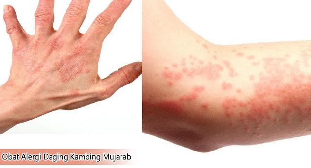 Obat Alergi Daging Kambing Mujarab