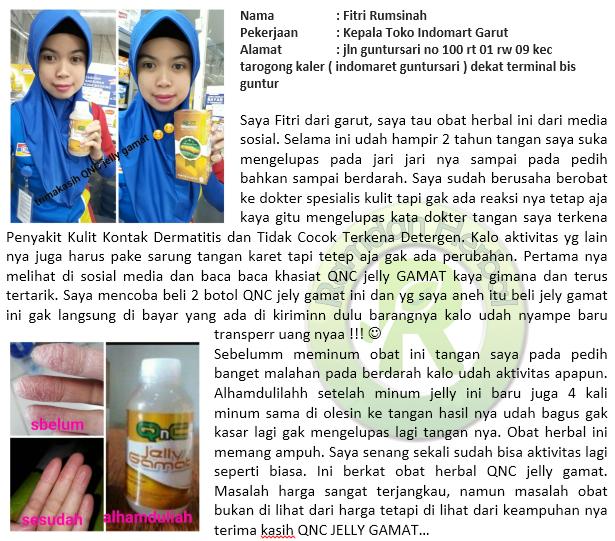 Salep Ampuh Kulit Dermatitis Kontak
