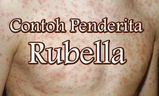 Apa Itu Rubella Apa Itu Campak Bagaimana Ciri-Cirinya