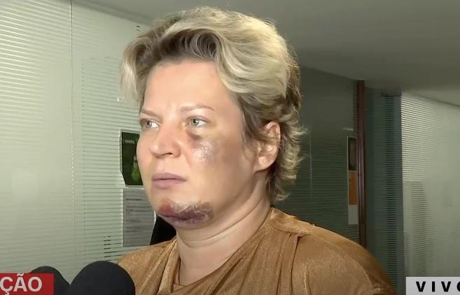 Joice se recusou a fazer exame toxicológico pedido pela polícia