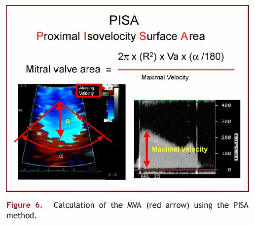 Calculation of the Mitral Valve Area using PISA method on Mitral Stenosis