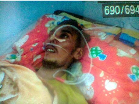 Asan Ashari saat dirawat / Via metro24jam.com